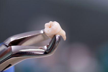 抜歯 奥歯